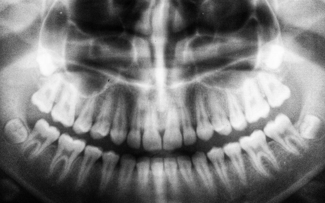 Eligible Seniors in Kingston Should Apply for The Seniors Dental Care Program